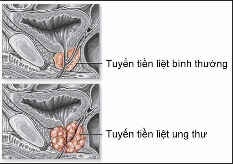 [Image: 167_prostatecancer.jpg]