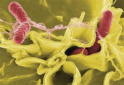 vi khuẩn shigellosis, nhiễm độc, đau bụng, đi ngoài, mất nước, động kinh, sa trực tràng, vệ sinh đúng cách
