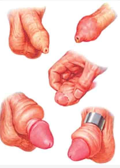 ... là ngẹt bao quy đầu (nghĩa là bao quy đầu kéo lên được nhưng không kéo  xuống được làm quy đầu bị thắt chặt lại gây tụ máu quy đầu dương vật)