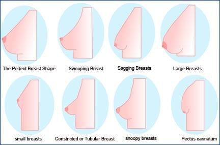 Kết quả hình ảnh cho những kiểu dạng ngực