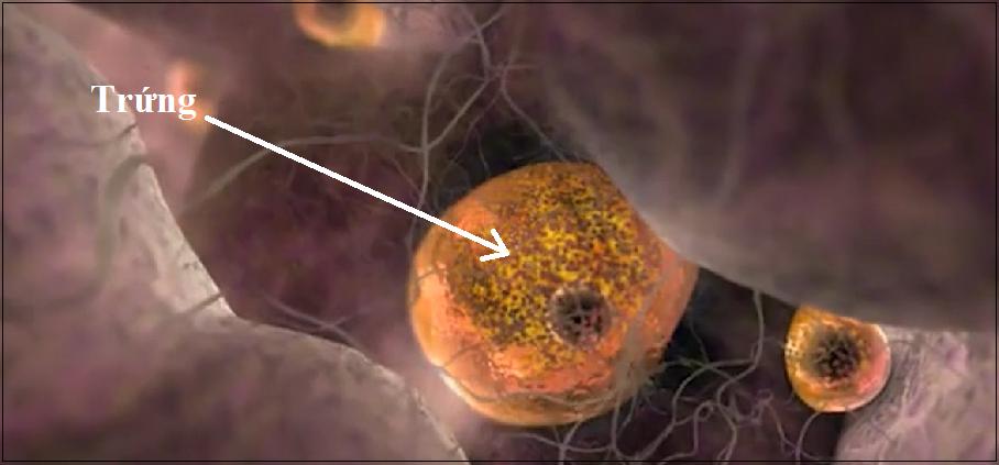 suy buồng trứng sớm, buồng trứng, vô sinh, nguyên nhân suy buồng trứng sớm, triệu chứng của suy buồng trứng sớm, điều trị suy buồng trứng sớm, suy buồng trứng sớm gây vô sinh, phòng tránh suy buồng trứng sớm