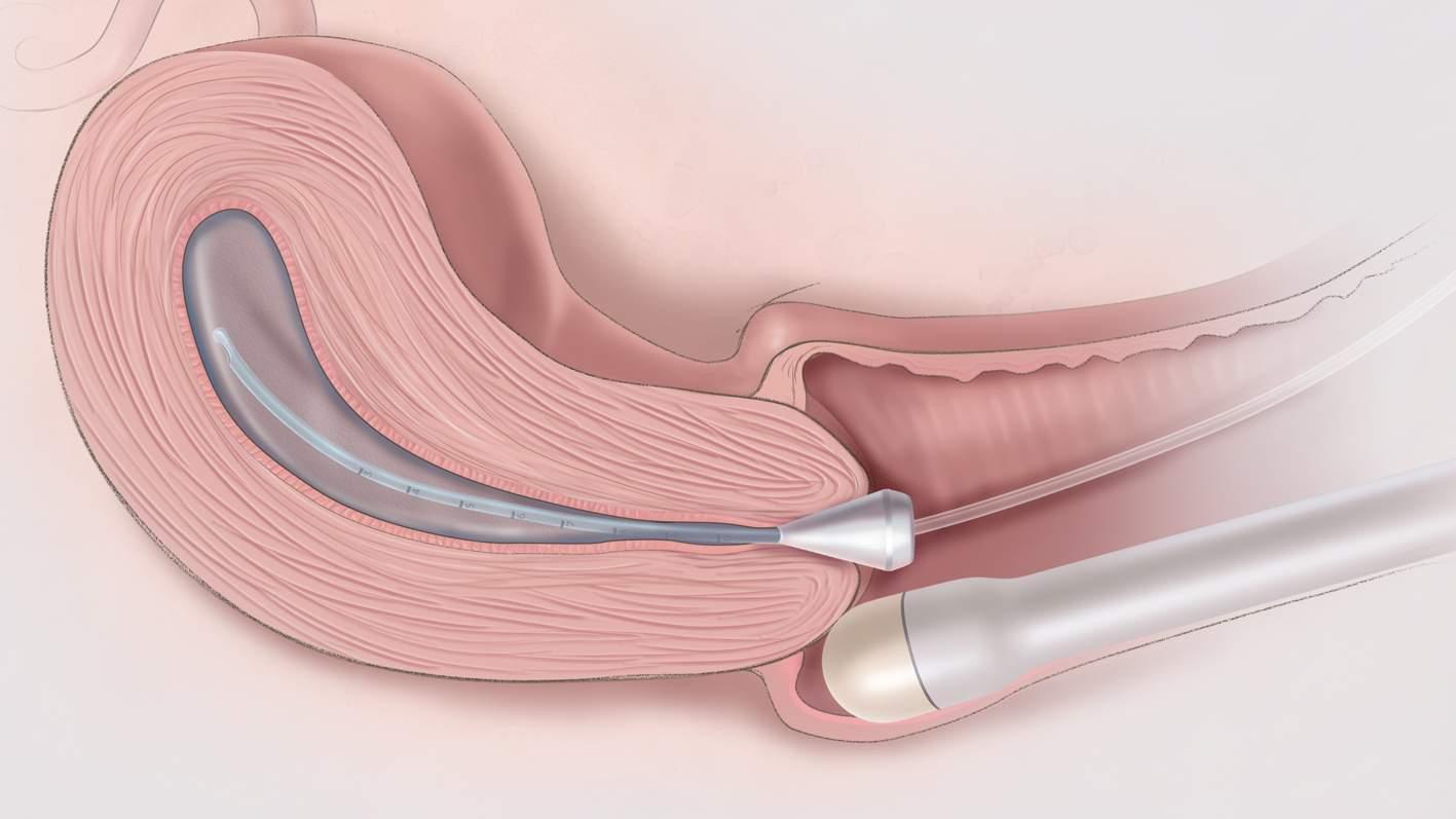siêu âm, tử cung, buồng trứng, tiểu khung, vô sinh, chửa ngoài tử cung, màng trinh, quan hệ,