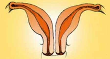tử cung, dị dạng tử cung, tử cung hai sừng, tử cung nhi hóa, vô sinh, vách ngăn, mang thai, âm đạo