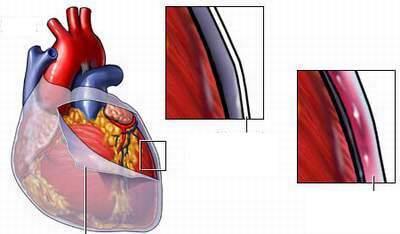 viêm màng tim, nhiễm trùng, đau tức ngực, khó thở, tràn dịch màng tim, ho khan,