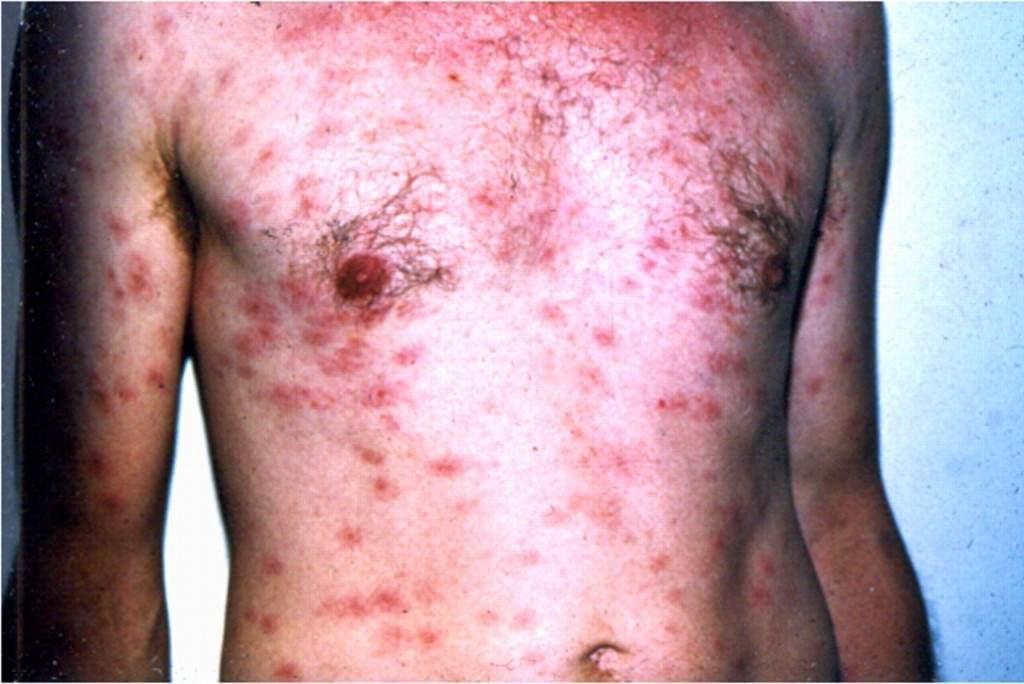 bệnh giang mai, xoắn khuẩn giang mai, đường lây nhiễm bệnh giang mai, biến chứng của giang mai, phòng bệnh giang mai