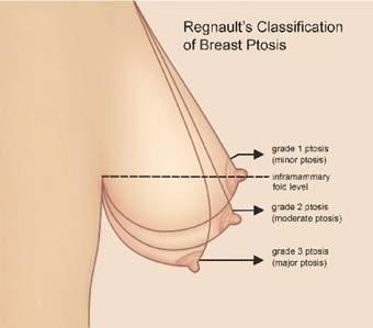 vú bị biến dạng, vú bị chảy xệ, vú phì đại, thiểu sản, vú không cân đối, hormone nội tiết, phấu thuật, tạo hình thẩm mĩ