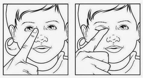 tắc tuyến lệ, tuyến lệ đạo, cách vệ sinh mắt, thông tuyến lệ, viêm tuyến lệ, sưng đỏ mắt,