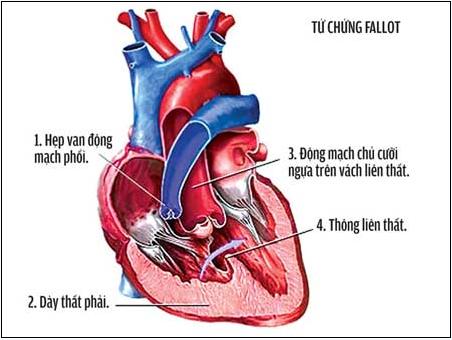 hẹp động mạch phổi, tim bẩm sinh, bệnh tim thể tím, hẹp van động mạch, viêm nội tâm mạc, suy tim, thông liên nhĩ, nong van động mạch,