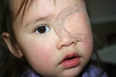 nhược thị ở trẻ, giảm thị lực, tật khúc xạ, nguyên nhân nhược thị, phân loại nhược thị, nhược thị khúc xạ, đục thủy tinh thể, điều trị nhược thị