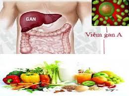 Viêm gan A, bệnh truyền nhiễm, viêm gan a lây qua đường nào, viêm gan a là gì