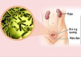 lao sinh dục, lao tiết niệu, bệnh lao ngoài phổi, bệnh lao gây vô sinh, triệu chứng lao sinh dục