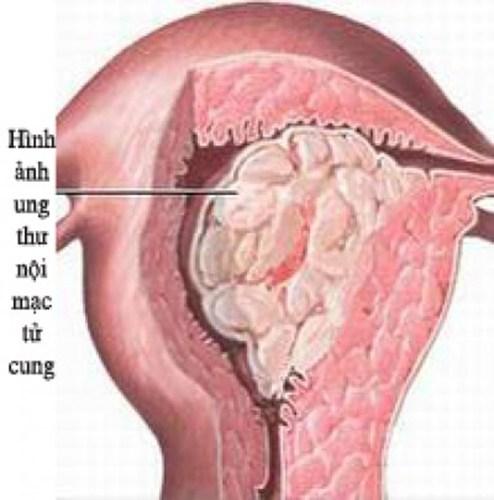 ung thư nội mạc tử cung, ung thư tử cung, điều trị ung thư tử cung, dấu hiệu ung thư nội mạc tử cung