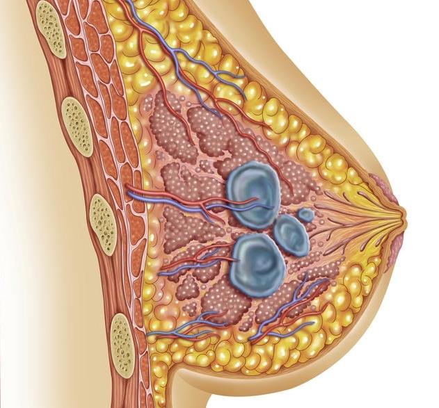 dị sản nang, u nang tuyến vú, nang vú lành tính, biểu hiện nang vú, dị sản sợi
