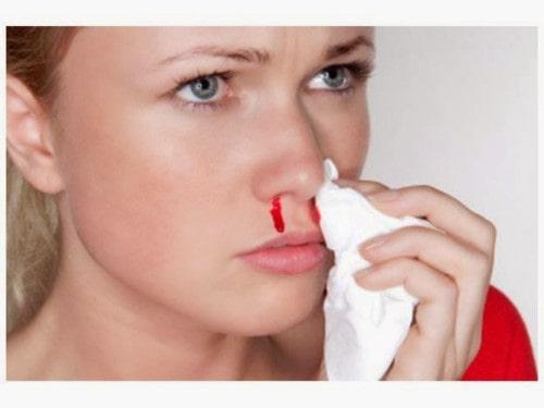 Chảy máu cam khi mang thai, nguy hiểm, ảnh hưởng thai nhi, xử lý chảy máu cam
