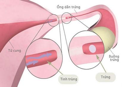 ứ nước vòi trứng, ứ nước ống dẫn trứng, điều trị ứ nước vòi trứng, nguyên nhân ứ nước vòi trứng, triệu trứng ứ nước vòi trứng, vô sinh do ứ nước vòi trứng, biến trứng gây vô sinh do ứ nước vòi trứng