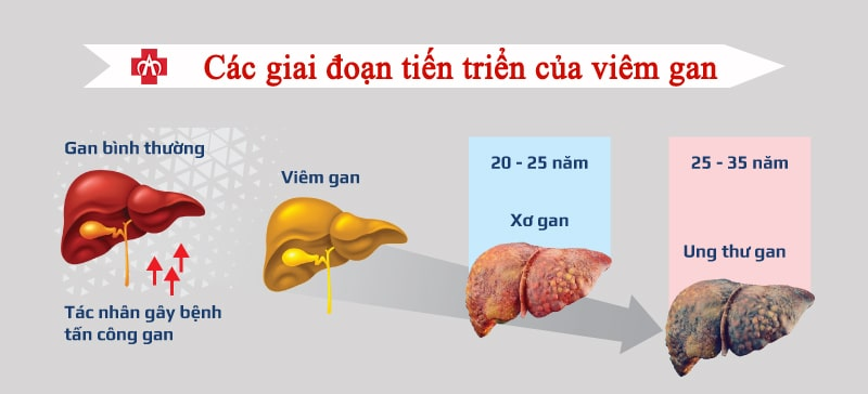các biến chứng của viêm gan b, suy gan ở người bị viêm gan b, viêm gan b dẫn đến xơ gan, ung thư gan do viêm gan b, phòng viêm gan b, tiêm phòng viêm gan b, theo dõi viêm gan b