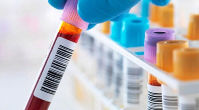 nội tiết tố, nam khoa, hormon sinh dục, chỉ số, xét nghiệm, điều chỉnh