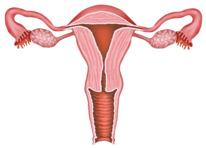 Lạc nội mạc tử cung vết khâu tầng sinh môn