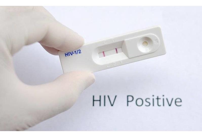 Bạn biết gì về que thử HIV tại nhà?