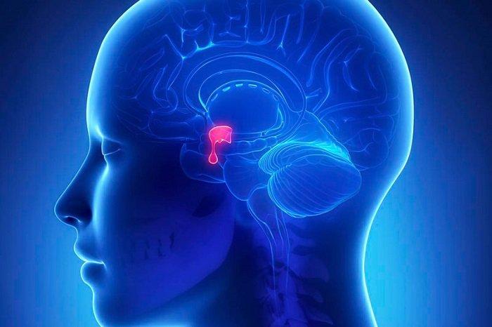 U tuyến yên: Nguyên nhân gây vô sinh cho cả nam và nữ không thể chủ quan
