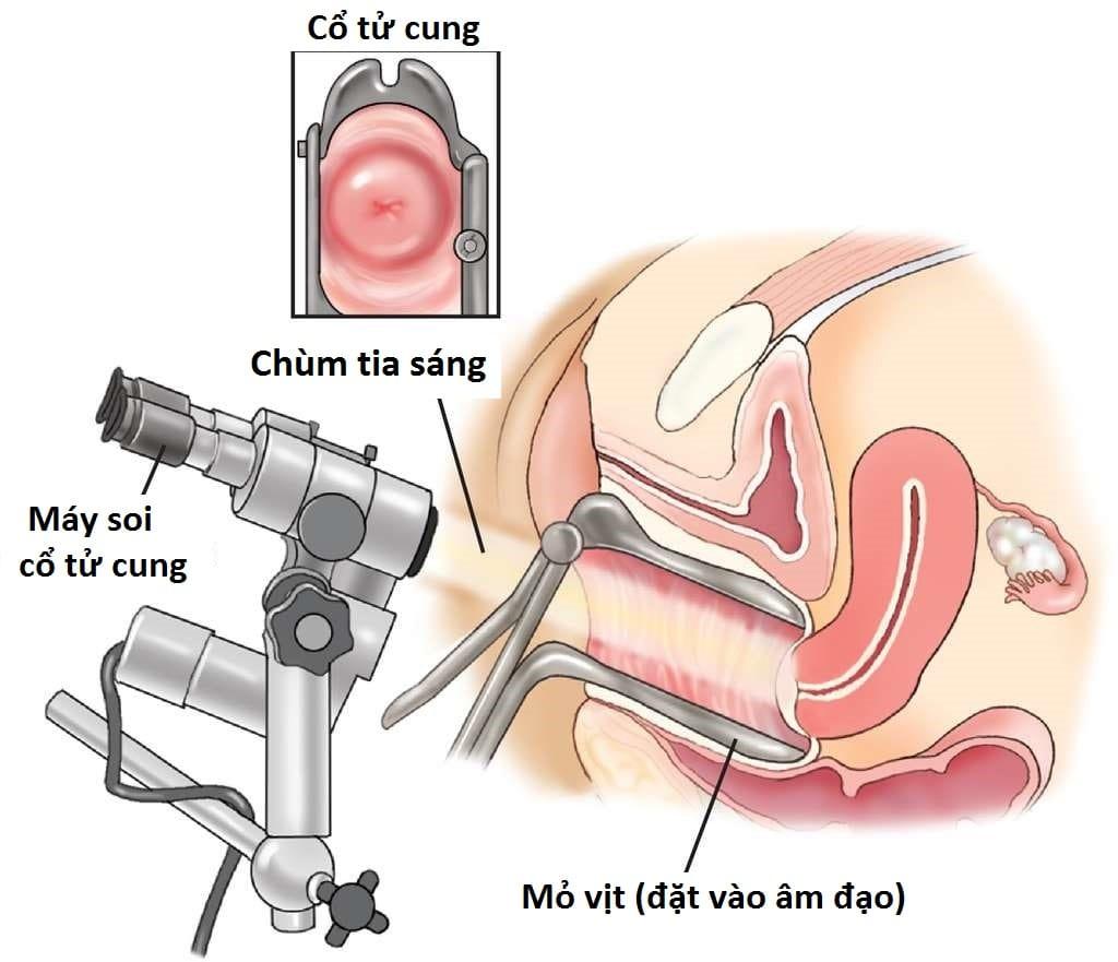 Soi cổ tử cung là một biện pháp được các bác sĩ sử dụng để phát hiện sớm các bệnh lý bất thường ở tử cung phụ nữ, đặc biệt là ung thư cổ tử cung. Soi cổ tử cung có thể thực hiện bằng mắt thường, nhưng đa số phải dùng đến máy soi chuyên biệt với độ phóng đại lên nhiều lần.