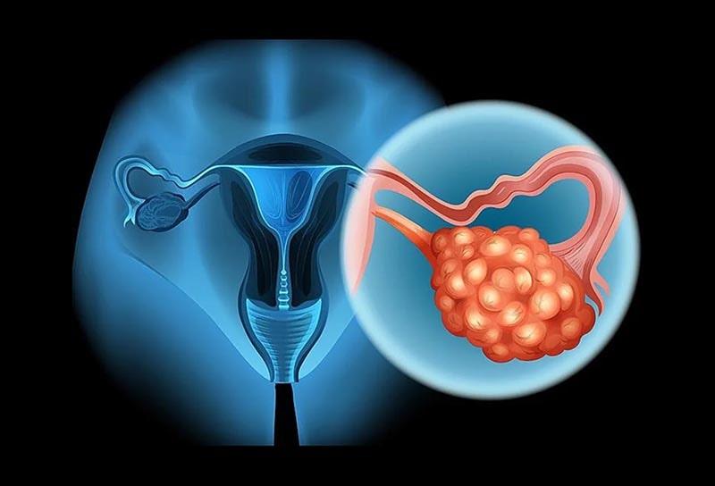 U nang buồng trứng có thể gây ung thư hay không