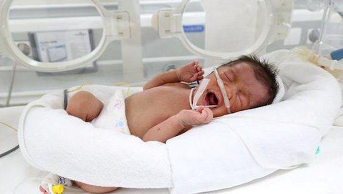 Tỷ lệ sống ở trẻ sinh non và những vấn đề trẻ sinh non thường gặp