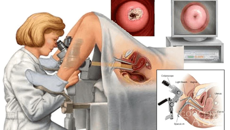 Tìm hiêu về phương pháp nhuộm lugol cổ tử cung