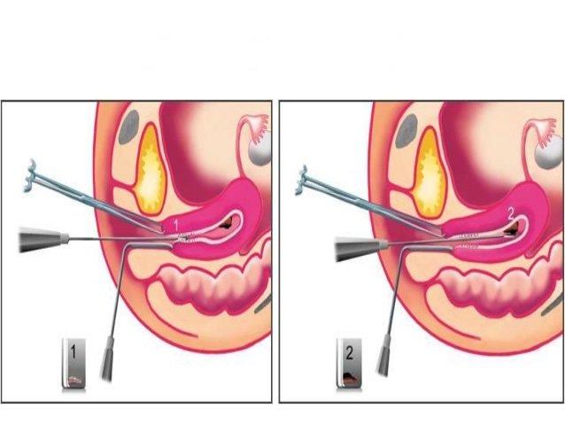 Nạo sinh thiết nội mạc tử cung là gì? Có đau không?