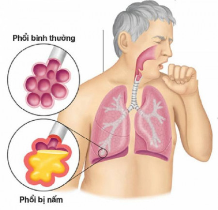 Aspergillus, nấm phổi, sức khỏe, bệnh nguy hiểm