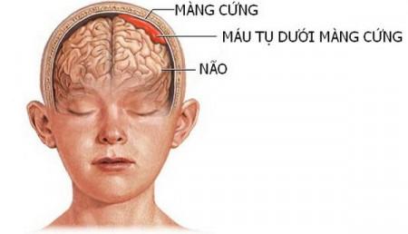 máu tụ dưới màng cứng não. sức khỏe người gia, tụ máu não
