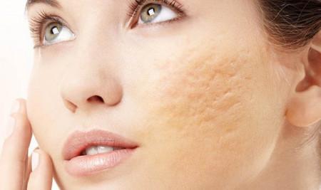 Sẹo rỗ sau bị mụn, có bao nhiêu phương cách điều trị?