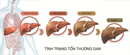 Tác hại của mỡ máu cao và các biện pháp hạn chế tăng mỡ máu