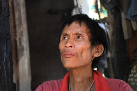 """""""Người rừng"""" Hồ Văn Lang bị căn bệnh """"quái ác"""" hành hạ trong đau đớn"""