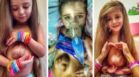 """Có trái tim nằm ngoài lồng ngực cực kỳ hiếm gặp, bé gái vừa ra đời đã được gọi là """"phép màu y học"""" giờ thế nào?"""