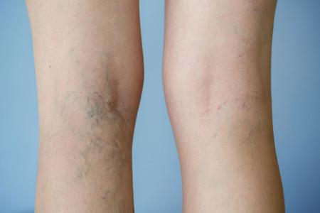 Tại sao tỉ lệ phụ nữ có nguy cơ bị suy giãn tĩnh mạch chân cao hơn nam giới?