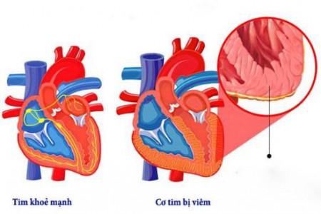 Cảnh giác với bệnh viêm cơ tim ở trẻ