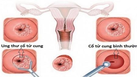 Những điều cần lưu ý khi tầm soát ung thư cổ tử cung