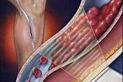 giãn tĩnh mạch, giãn tĩnh mạch khi mang thai, nguyên nhân gây giãn tĩnh mạch khi mang thai, triệu chứng giãn tĩnh mạch khi mang thai, điều trị giãn tĩnh mạch khi mang thai, phòng bệnh giãn tĩnh mạch khi mang thai