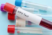 hpv, virus HPV, Xét nghiệm HPV, vaccine phòng ung thư cổ tử cung, cua so tinh yeu
