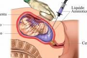 chọc ối, khi nào chọc ối, chỉ định chọc ối, mục địch chọc ối, tai biến chọc ối, phát hiện dị tật thai, bất thường nhiễm sắc thể