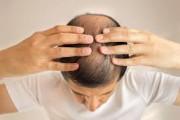 viêm nấm da đầu, tăng tiết bã nhờn, điều trị, da liễu, cuasotinhyeu.