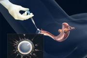 kích trứng, nội tiết, iui, trứng rụng, tinh trùng, tử cung, tất bại, thành công, cuasotinhyeu