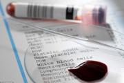 HIV, qua đường máu, giọt máu, lau khô, trực tiếp, vật dụng xâm nhập, vết thương hở, bệnh truyền nhiễm, cuasotinhyeu