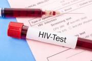 virus HIV, sinh phẩm HIV DUO, kháng thể, huyết thanh, máu toàn phần, âm tính, kết quả xét nghiệm, cuasotinhyeu