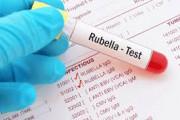 Xét nghiệm Rubella, IgM dương tính, IgG dương tính, nhiễm rubella thứ phát, hội chứng Rubella bẩm sinh, khả năng lây truyền, cuasotinhyeu