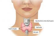 ung thư, qhtd, phụ nữ ung thư tuyến giáp, bệnh ung thư tuyến giáp