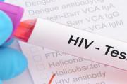 Xét nghiệm HIV sau 6 tháng vẫn âm tính liệu đã đủ yên tâm chưa ?