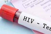 Xét nghiệm HIV sẽ cho kết quả giả ở những trường hợp nào ?