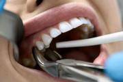Nhổ răng có gây ra tình trạng đi tiểu ra dịch có máu không ?